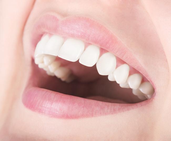 Izbjeljivanje zubi sodom bikarbonom